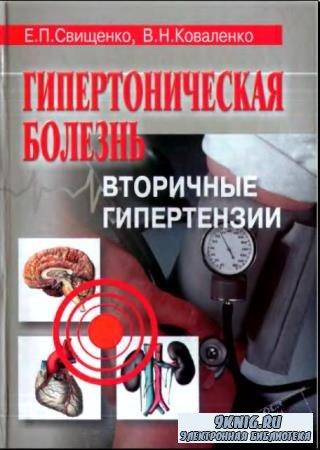 Евгения Свищенко, Владимир Коваленко - Гипертоническая болезнь. Вторичные гипертензии (2002)